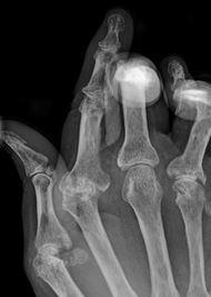 artrite reumatoide cnr gemelli