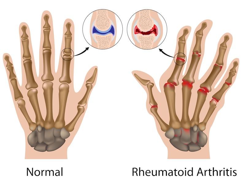 artrite-reumatoide-sintomi.jpg